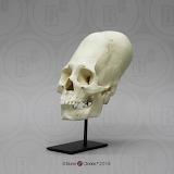 Human Peruvian Female Skull with Cranial Binding